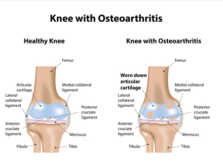 Knee Joint with arthritis symptoms