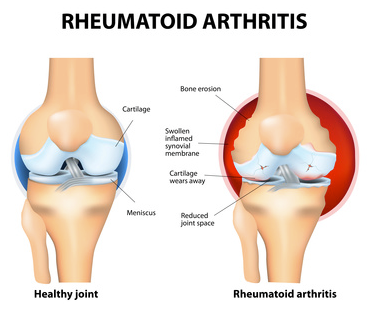 Rheumatoid Arthritis symptoms in the knees