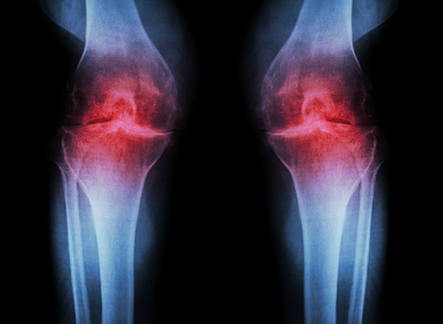 detection of osteoarthritis