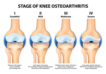 The four stages of osteoarthritis