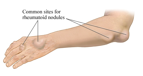 rheumatoid nodules which commonly show arthritis symptoms