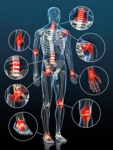 illustration of joints most commonly affected by rheumatoid arthritis