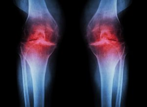 Osteoarthritis Self-Test confirmed by X-Ray